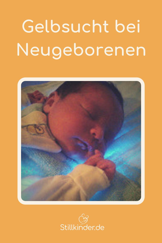 Phototherapie bei einem Neugeborenen mit Gelbsucht