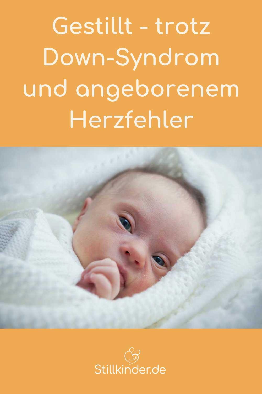 Neugeborenes mit Down-Syndrom
