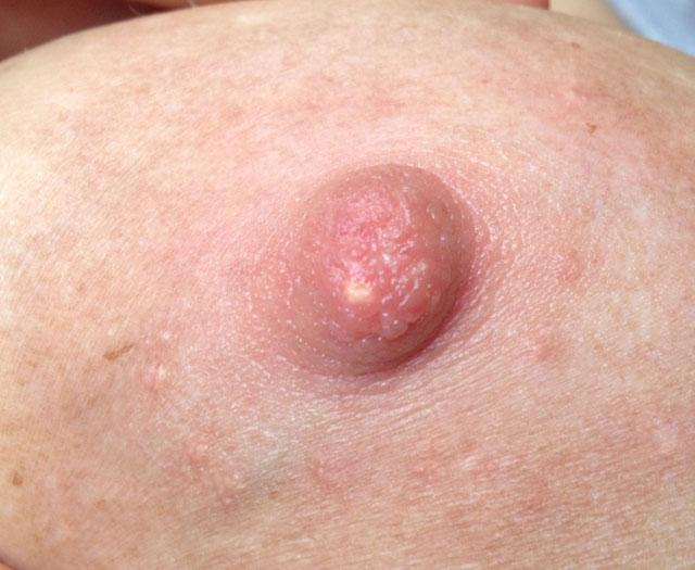 Die Erhöhung der Brust der Volksmedizin